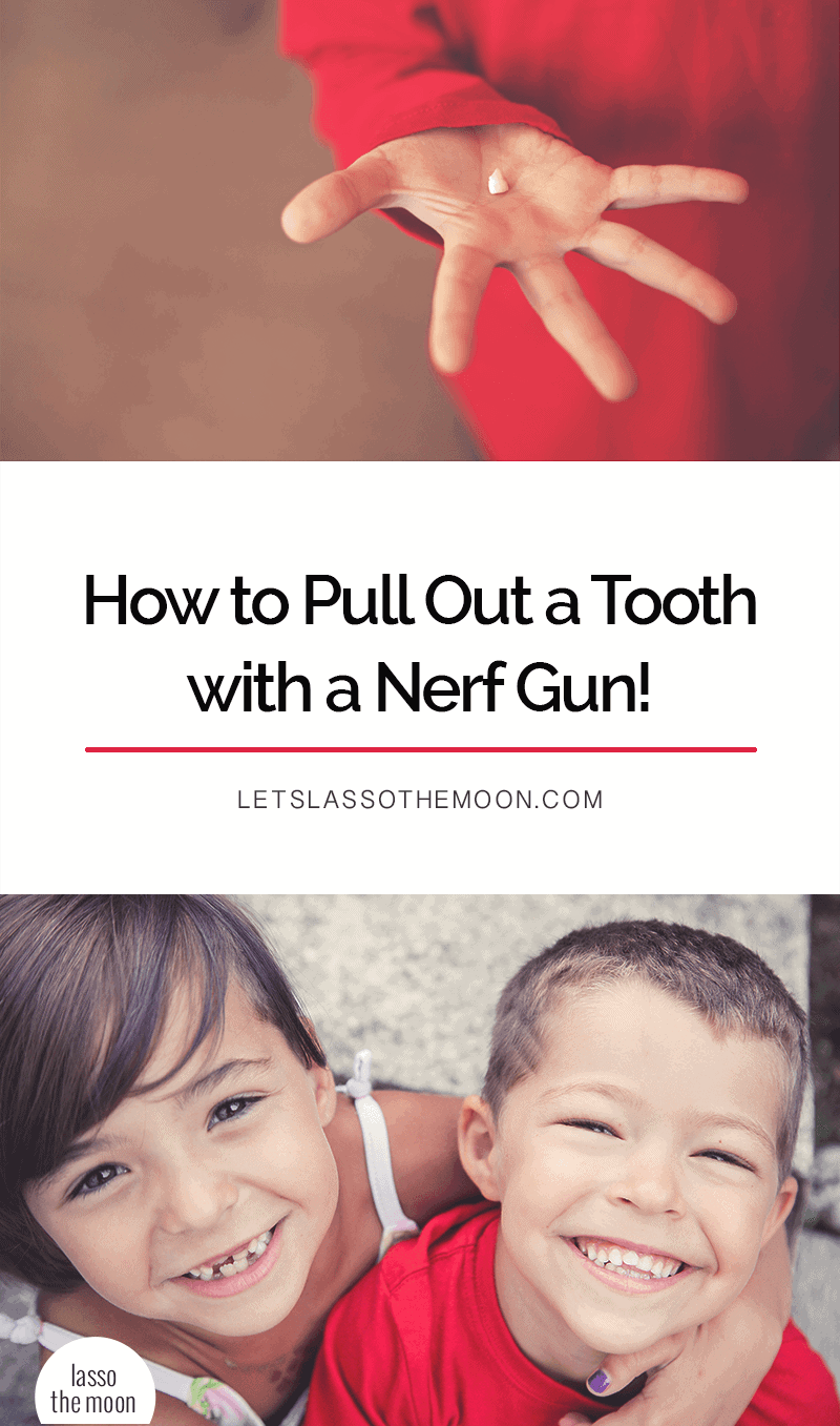 This collection of Nerf Gun tooth pulls is HILARIOUS. What an awesome way to pull a wobbly tooth! Cracking up over here. #nerfguntoothpull #toothpull #loosetooth #video *Love this!